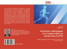Portada del libro de Evaluation radiologique d'un implant tibial  en tantale  dans les  PTG
