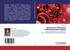 Обложка Злокачественные заболевания крови