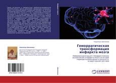 Bookcover of Геморрагическая трансформация инфаркта мозга