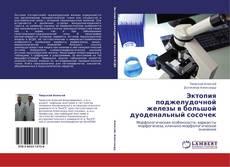 Capa do livro de Эктопия поджелудочной железы в большой дуоденальный сосочек