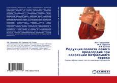 Buchcover von Редукция полости левого предсердия при коррекции митрального порока