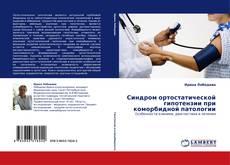 Bookcover of Синдром ортостатической гипотензии при коморбидной патологии