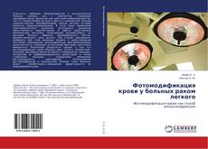 Capa do livro de Фотомодификация крови у больных раком легкого