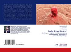 Bookcover of Male Breast Cancer