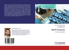 Bookcover of Skull Fractures