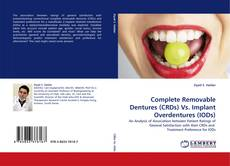 Capa do livro de Complete Removable Dentures (CRDs) Vs. Implant Overdentures (IODs)