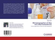 Bookcover of Micropropagation of Aloe vera (Aloe barbadensis)