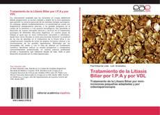 Bookcover of Tratamiento de la Litiasis Biliar por I.P.A y por VDL