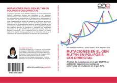 MUTACIONES EN EL GEN MUTYH EN POLIPOSIS COLORRECTAL的封面