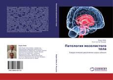 Обложка Патология мозолистого тела