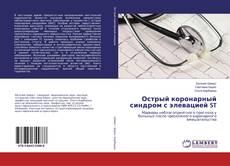 Bookcover of Острый коронарный синдром с элевацией ST