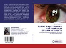 Bookcover of Выбор искусственного хрусталика при лечении катаракты