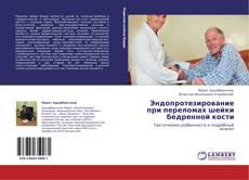 Portada del libro de Эндопротезирование при переломах шейки бедренной кости
