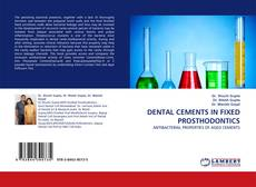 Bookcover of DENTAL CEMENTS IN FIXED PROSTHODONTICS