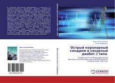 Bookcover of Острый коронарный синдром и сахарный диабет 2 типа.