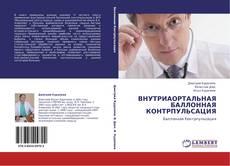 Bookcover of ВНУТРИАОРТАЛЬНАЯ БАЛЛОННАЯ КОНТРПУЛЬСАЦИЯ