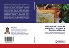 Bookcover of Клеточная терапия язвенного колита и болезни Крона