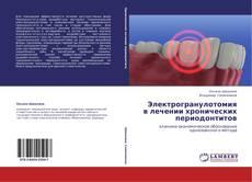 Bookcover of Электрогранулотомия в лечении хронических периодонтитов