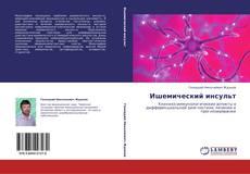 Bookcover of Ишемический инсульт