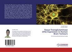 Bookcover of Tissue Transglutaminase (tTG) Expression in Human Brain Tumours