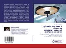 Bookcover of Лучевая терапия в лечении метастатической меланомы кожи