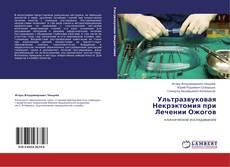 Buchcover von Ультразвуковая Некрэктомия при Лечении Ожогов
