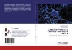 Обложка Злокачественные глиомы головного мозга