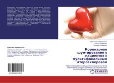 Bookcover of Коронарное шунтирование у пациентов с мультифокальным атеросклерозом