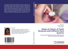 Bookcover of Mode of Failure of Teeth Restored with Different Post Systems