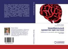 Bookcover of Церебральный кровоток при гестозе