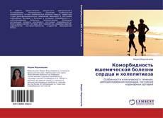 Bookcover of Коморбидность ишемической болезни сердца и холелитиаза