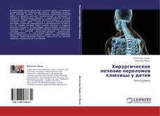 Bookcover of Хирургическое лечение переломов ключицы у детей