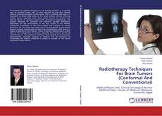 Radiotherapy Techniques For Brain Tumors (Conformal And Conventional)的封面