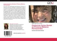 Bookcover of Control de Caries Dental en Primeros Molares Permanentes