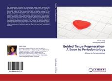 Bookcover of Guided Tissue Regeneration- A Boon to Periodontology