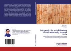 Bookcover of Intra-radicular rehabilitation of endodontically treated teeth
