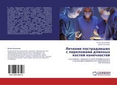 Borítókép a  Лечение пострадавших  с переломами длинных костей конечностей - hoz