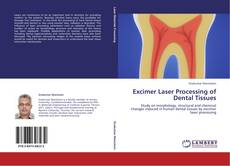 Bookcover of Excimer Laser Processing of Dental Tissues