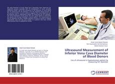 Bookcover of Ultrasound Measurement of Inferior Vena Cava Diameter of Blood Donors
