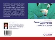 Bookcover of Лапароскопическая радикальная простатэктомия