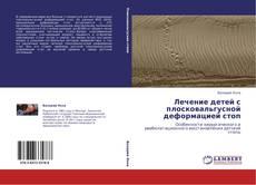Bookcover of Лечение детей с плосковальгусной деформацией стоп