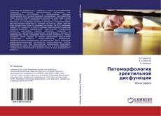 Portada del libro de Патоморфология эректильной дисфункции