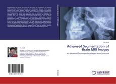 Advanced Segmentation of Brain MRI Images kitap kapağı