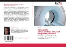 Portada del libro de Tomografía computarizada previa al trasplante pulmonar