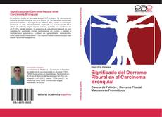 Borítókép a  Significado del Derrame Pleural en el Carcinoma Bronquial - hoz
