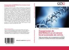 Borítókép a  Coexpresión de EGFR/Her2 en el cáncer local avanzado de cérvix. - hoz
