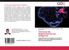 Bookcover of Técnicas de Segmentación de Imágenes