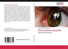 Bookcover of Córnea plana congénita