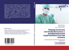Portada del libro de Хирургическое лечение больных с диафизарными переломами  костей голени