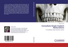Bookcover of Immediate Single Implant Restorations